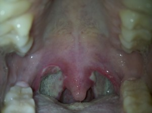 Tonsillectomy Day 10 -Strep After Tonsillectomy?