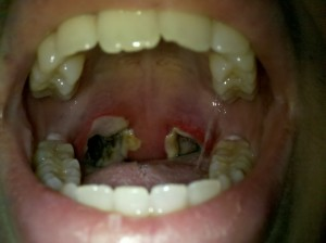 Tonsillectomy Day 4 post op