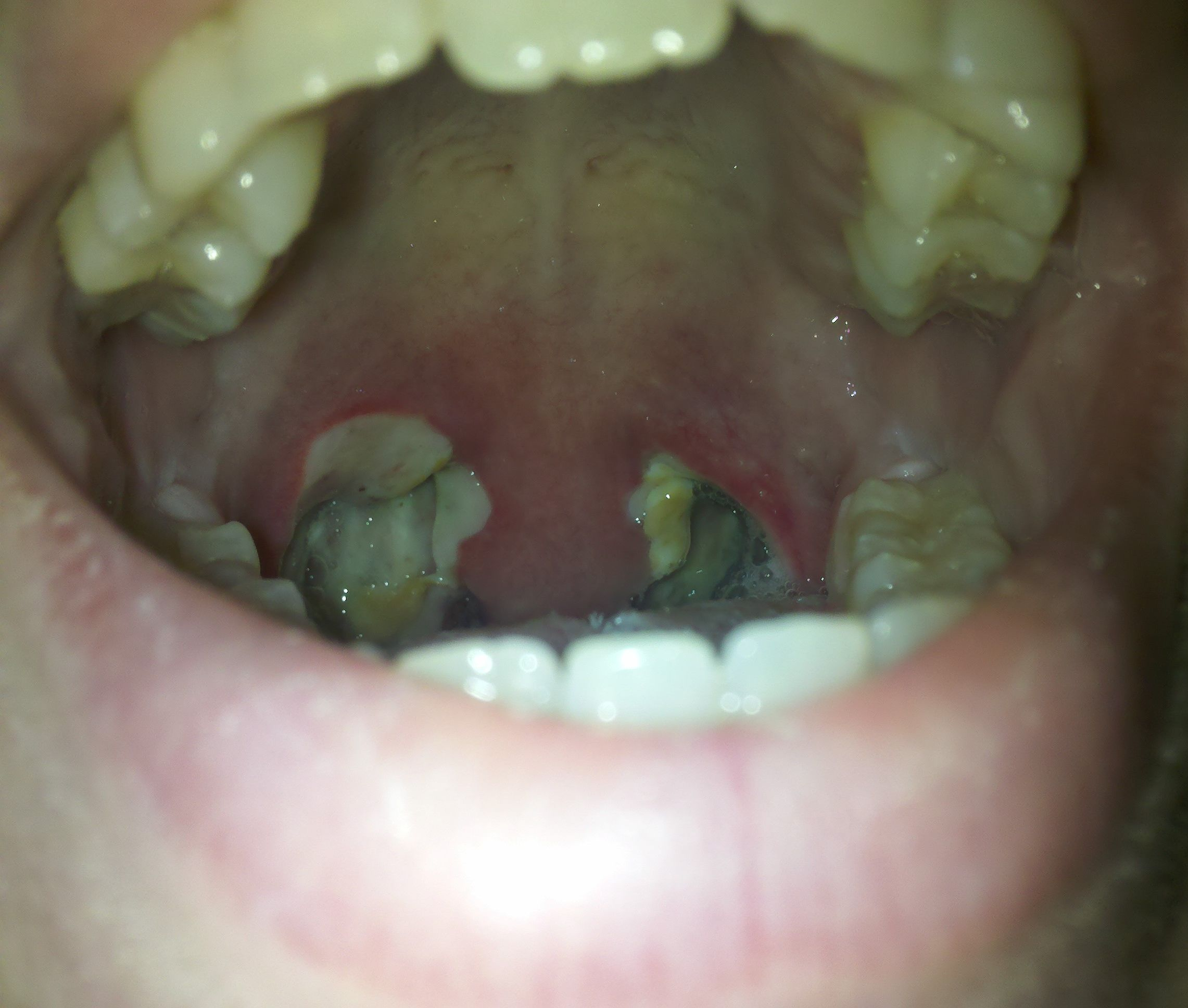 Tonsillectomy Recovery Picture Day 6