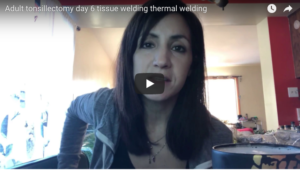 Tissue Welding Tonsillectomy recovery video blog